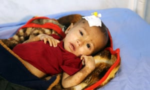 'Malnutrition and disease are rampant as basic services collapse,' said a Unicef representative.