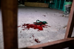 The sandal and blood of a police officer who was shot