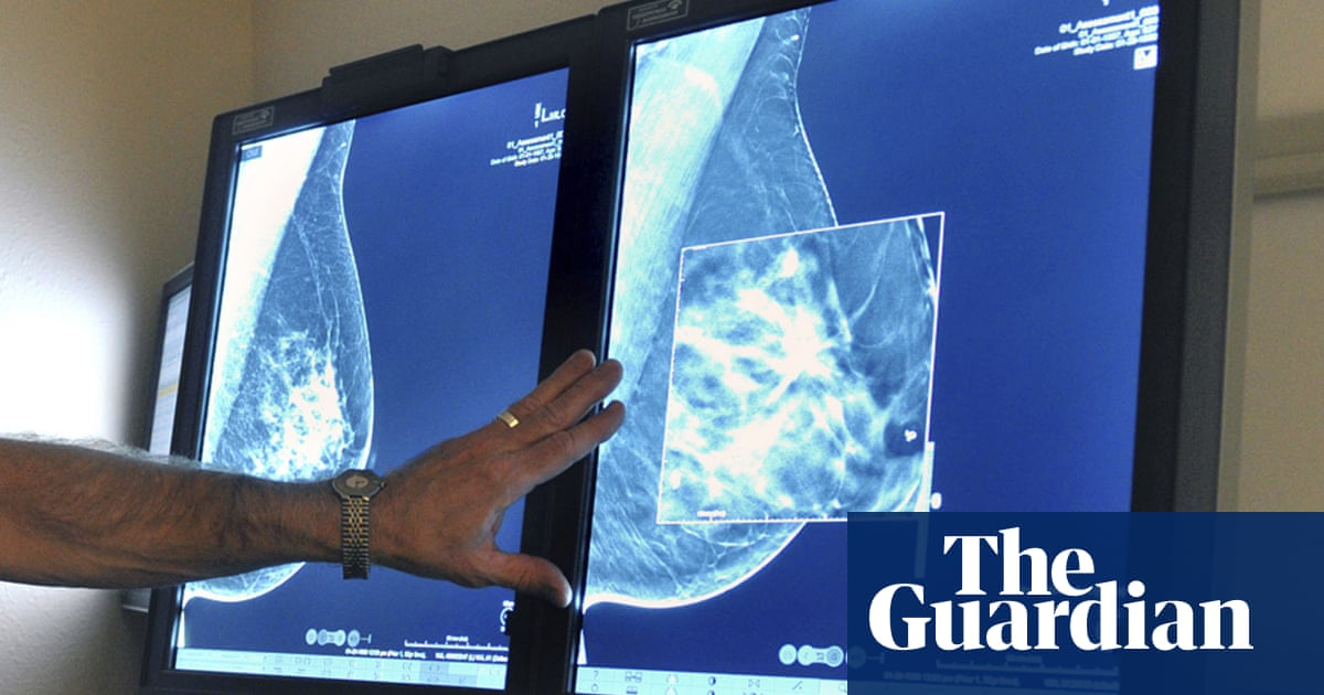 More detailed MRI to detect early breast cancer begins UK trials