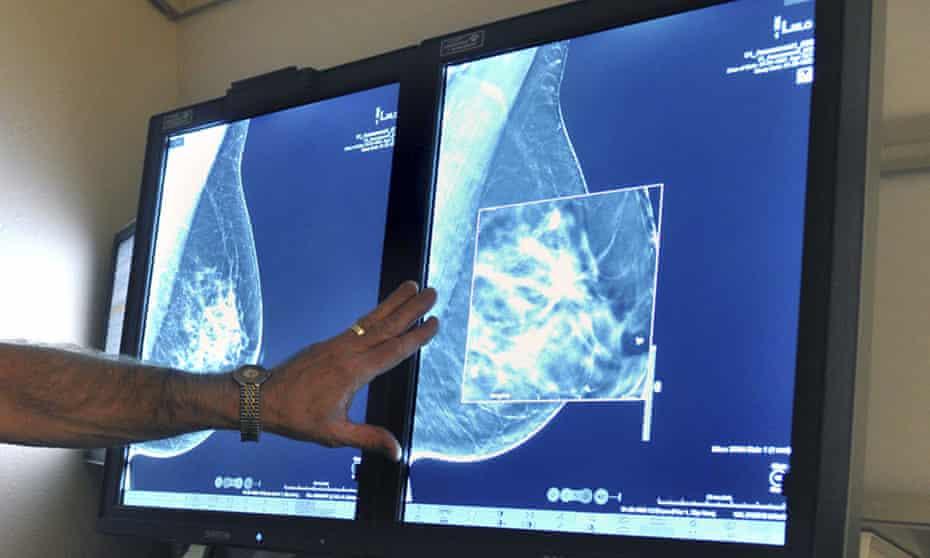A doctor examines a mammogram image