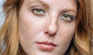 Ginger model with freckles