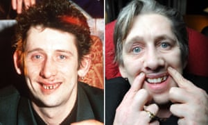 Shane MacGowan before and after having twenty-two new teeth