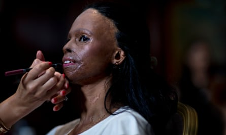 Laxmi, 28, a survivor of an acid attack in India at the age of 15