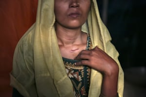 Roshida Begum, a 22-year-old Rohingya Muslim who says she narrowly escaped death at the hands of the Myanmar military