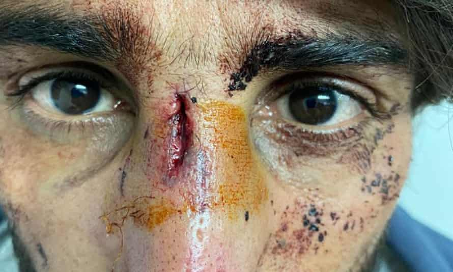 A man shows face wounds he says were inflicted by Croatian police.