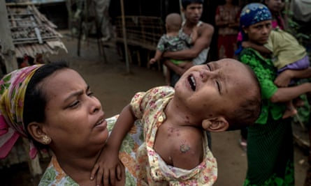 A Rohingya girl suffers from infected heat rash on her face and body in Sittwe, Burma. More than 100,000 Rohingya Muslims are confined to internal camps.