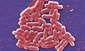 A colorised scanning electron micrograph image showing a strain of E coli