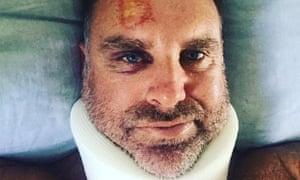 cricket great matthew hayden suffers spinal injuries while surfing