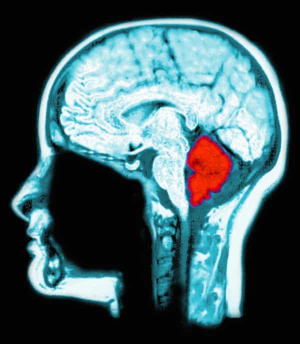 The cerebellum (in red).