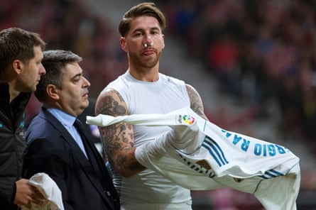 Sergio Ramos waits to come back on after suffering a broken nose during the derby.