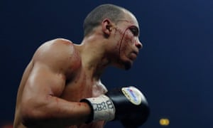 Chris Eubank Jr with a cut to his right eye during the fight.