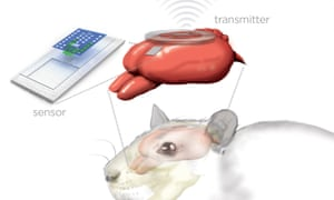 Artist's rendition of the sensor and wireless transmitter monitoring a rat's brain.