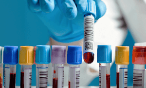 Row of blood samples