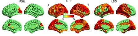 Brain activity with (left to right) psilocybin, ketamine and LSD
