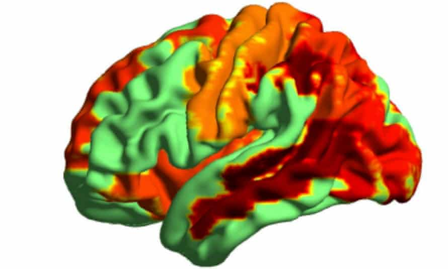 Researchers measured the activity of neurons in people's brains as the drugs took hold.