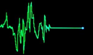 Heart rate monitor, flatlining