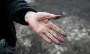 A farmer shows her hand covered with black dust near Rouen