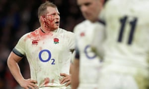 A bloodied Dylan Hartley during England's Six Nations victory over Wales at Twickenham in 2018.