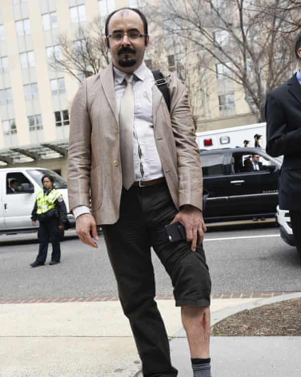 Journalist Emre Uslu shows the wound on his leg caused by the scuffle, Thursday, in front of the Brookings Institution.