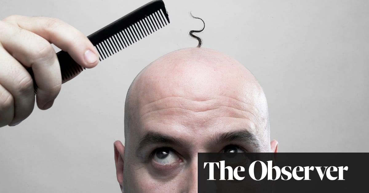 How Close Is A Cure For Baldness Fashion The Guardian Fascinating Male Pattern Baldness Cure Discovered