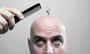 men afro hair styles how is a cure for baldness fashion the guardian 7140 | 4072