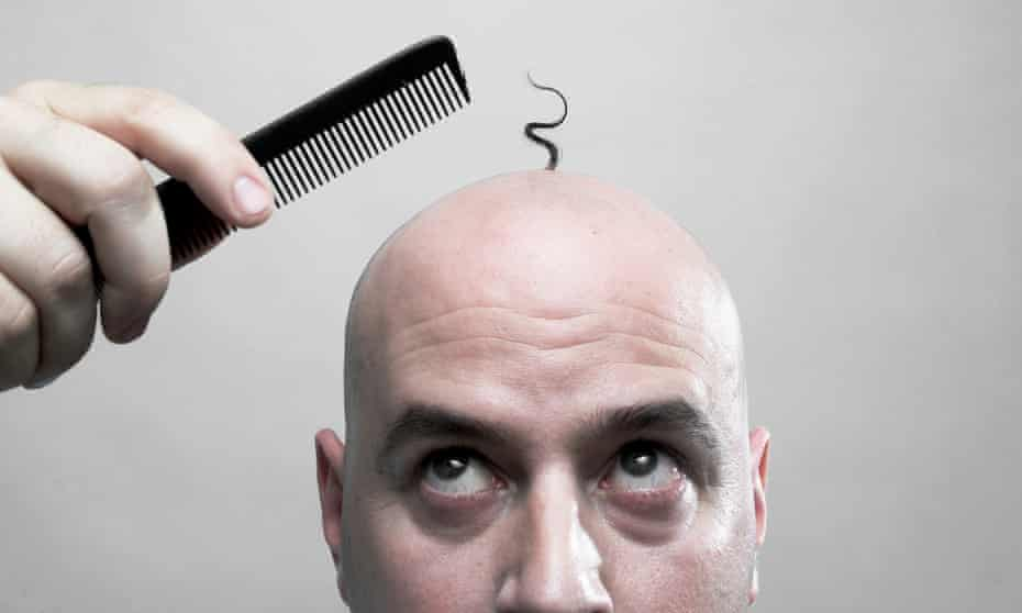Hair today, gone tomorrow: if you're going to go bald, it's probably best to develop a sense of humour.