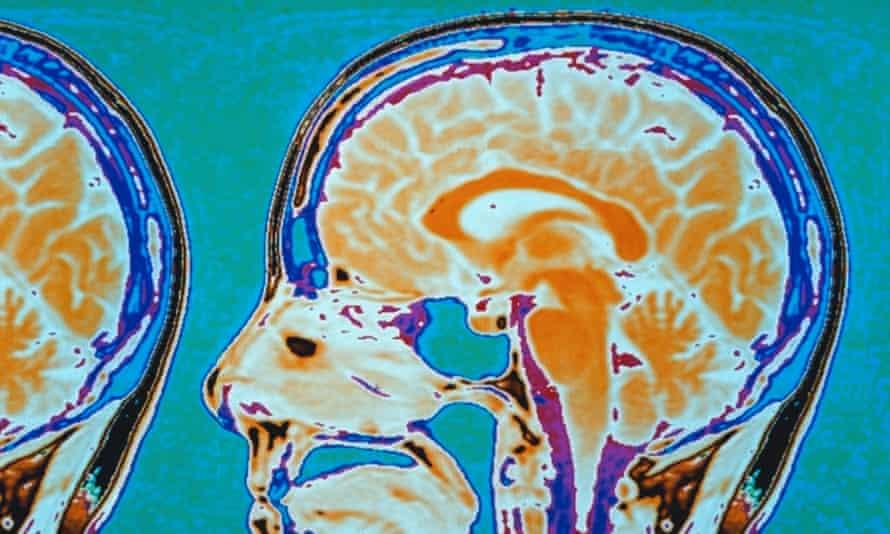 A brain scan, using positron emission tomography.