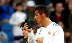 Cristiano Ronaldo uses a mobile phone to check a wound in his face