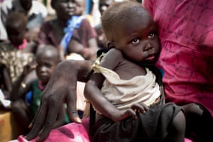 A woman holds her severely malnourished child while they wait to be registered to receive food aid
