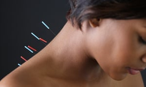 Acupuncture researchers say there is no additional benefit from inserting needles compared with the non-intrusive use of blunt needles.