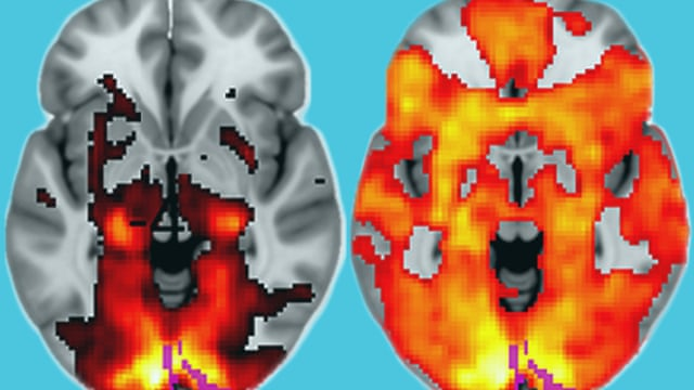 LSD's impact on the brain revealed in groundbreaking images