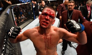 UFC fighter Nate Diaz.