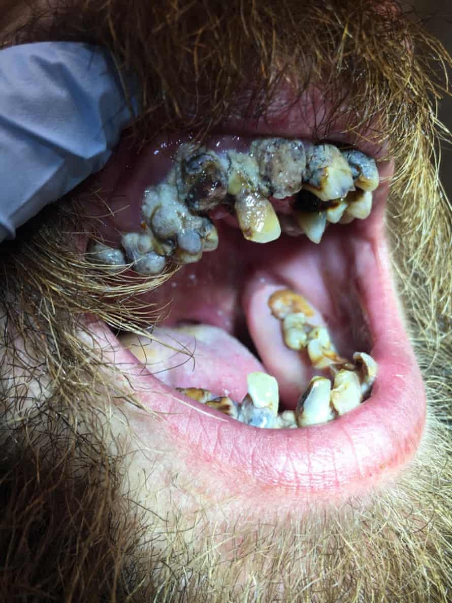 A patient who came into the clinic needing all 30 of his teeth to have root canal surgery.