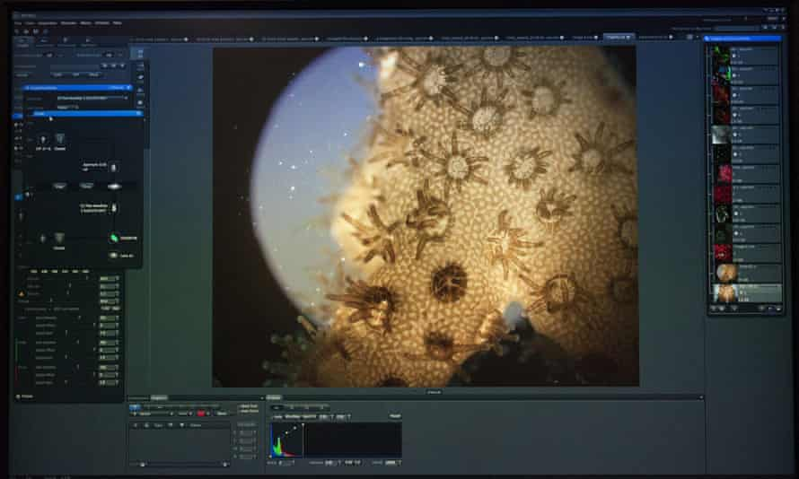Living coral viewed under a microscope