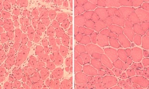 "On the left is muscle tissue from an aged mouse. On the right is muscle tissue from an aged mouse that has been subjected to ""reprogramming""."