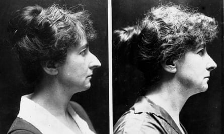 Before and after nose job picture, 1924
