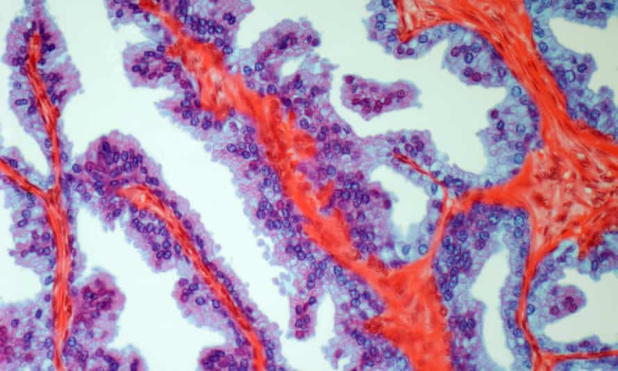 Light micrograph showing prostate cancer