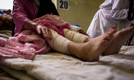 Laila, 50, is married and has five children. Her husband set her on fire using kerosene while she was sleeping