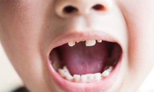Children S Teeth Rotting In Their Mouths Because Of Sugary Foods Say Experts Society The Guardian