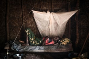 A patient waits for surgery in the makeshift hospital at a displaced people's camp near Zemio, Democratic Republic of Congo.