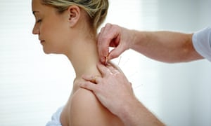 Acupuncture has no proven bearing on the outcome of IVF, although it is offered in clinics.