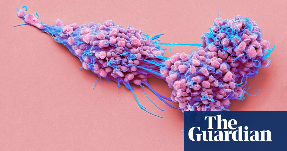 'Highly effective' ovarian cancer treatment could help thousands of women