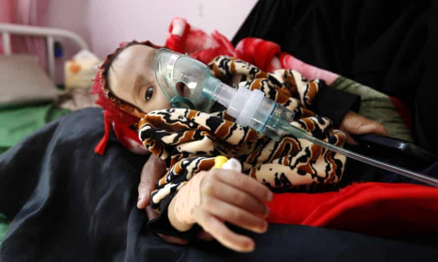 A malnourished Yemeni child receives treatment at a hospital in the capital, Sana'a