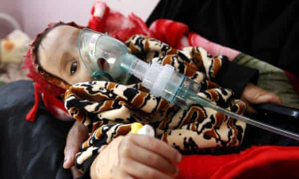 A malnourished Yemeni child receives treatment at a hospital in the capital Sana'a.