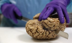 Professor Steve Gentleman cuts a human brain at the Multiple Sclerosis and Parkinson's UK Tissue Bank at Imperial College London.