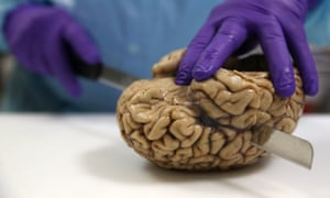 Prof Steve Gentleman cuts a human brain at the Multiple Sclerosis and Parkinson's UK Tissue Bank at Imperial College London