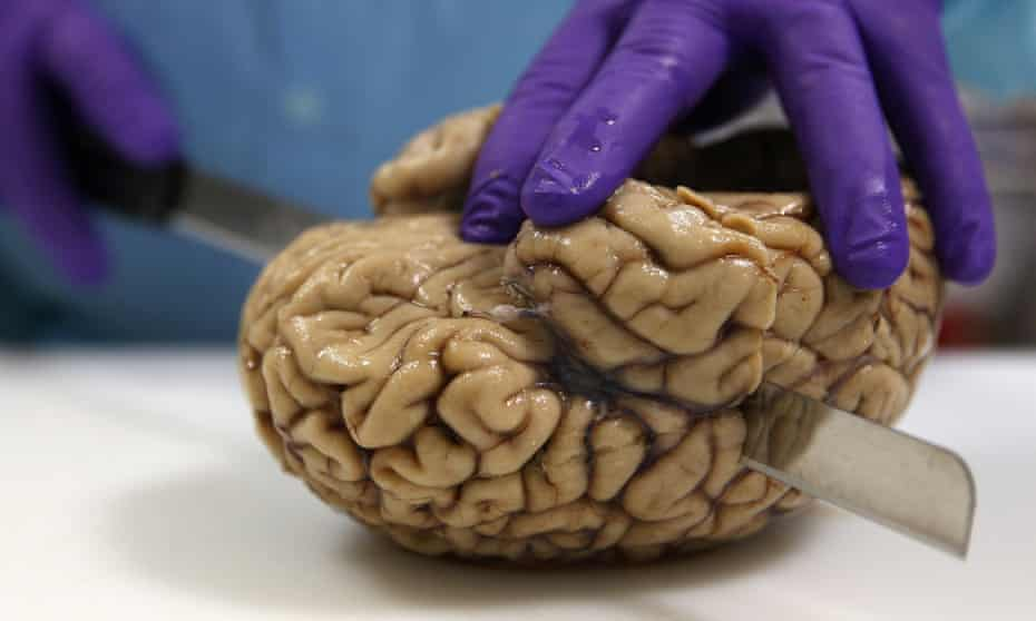 Cutting a human brain. The call for debate has been prompted by a raft of studies in which scientists have made 'brain organoids'.