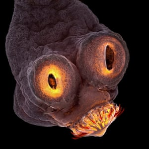 Tapeworm, a micrograph of the head of a pork tapeworm by Teresa Zgoda.