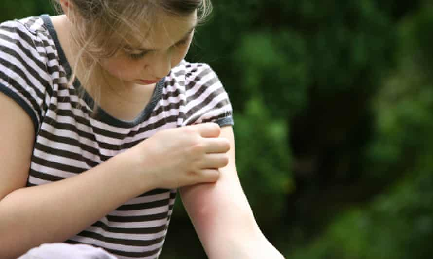 A young girl scratching an itchy mosquito bite