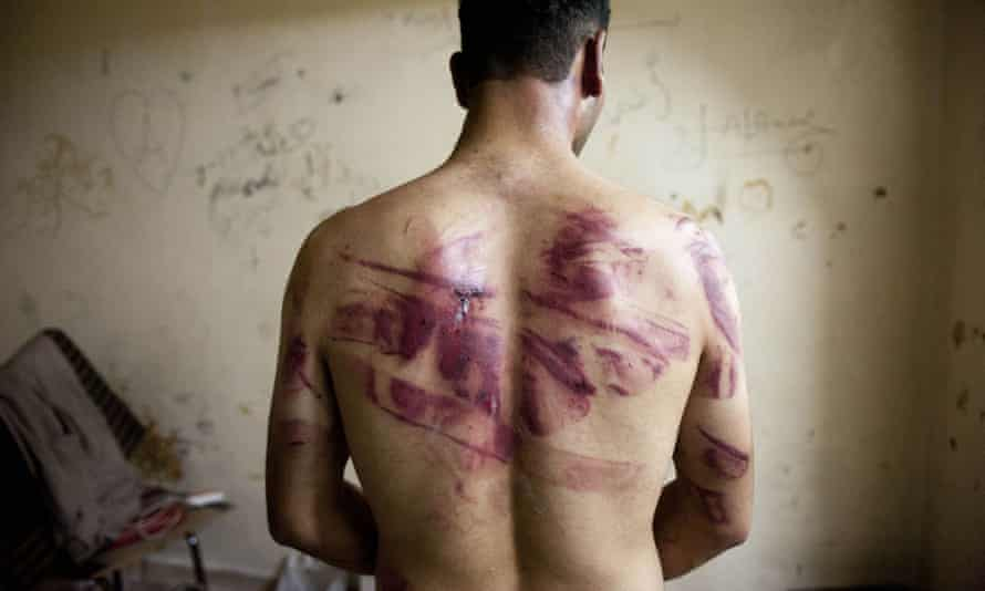 A Syrian man shows marks of torture on his back after his release by Assad forces in 2012
